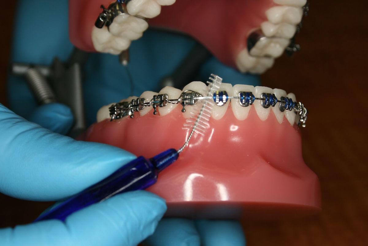 ortodontie-aparat-fix