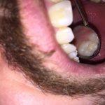 Etapele refacerii unui molar superior – Odontologie